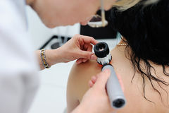 Melanoma diagnosis. the doctor examines the patient's mole Stock Photography
