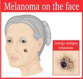 Melanoma en la mejilla Fotografía de archivo