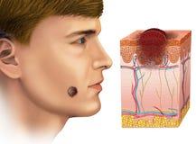 Melanoma on the face stock illustration