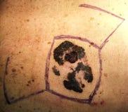 Melanoma. Malignant melanoma, cancer of the skin, preoperatory Stock Photo