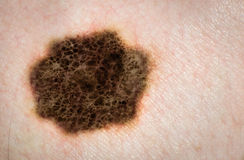 Melanoma, skin cancer, mole, skin disease. Royalty Free Stock Photography