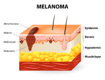 Melanoma or skin cancer. This rare type of skin cancer originates from melanocytes. layers of the human skin royalty free illustration