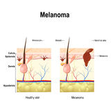 Melanoma or skin cancer. Royalty Free Stock Images