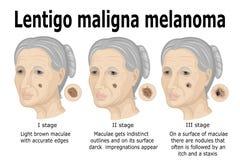 Melanoma van Lentigomaligna Stock Foto