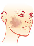 Melasma illustration royalty free illustration