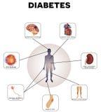 Mellitus diabetes Stock Afbeelding