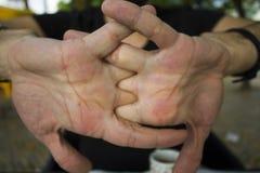 Men cracking their knuckles
