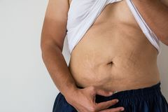 Men fat belly fat with stretch marks. On white background royalty free stock images