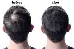 Men hair after using cosmetic powder hair thickening. Before and after royalty free stock photos