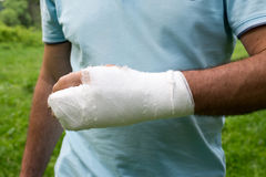 Men with his broken right arm Stock Image