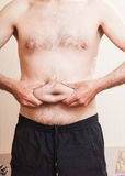 Men obesity. Naked belly men obesity disease metabolic disorder Royalty Free Stock Photography