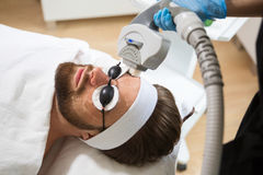 Men`s anti-aging laser therapy Royalty Free Stock Images