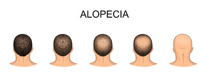 Men s balding head. Illustration of male head, alopecia Royalty Free Stock Image