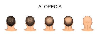 Men s balding head Royalty Free Stock Image