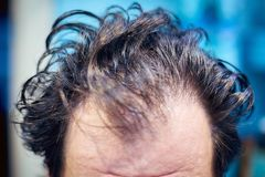 Men`s dirty unkempt hair early in the morning royalty free stock images