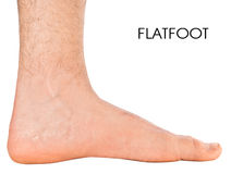Men's foot. Flatfoot second degree. Isolated on white background royalty free stock photos