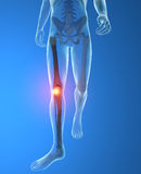 Men's skeleton, knee inflammation. Men's skeleton, race knee inflammation pain Stock Photography
