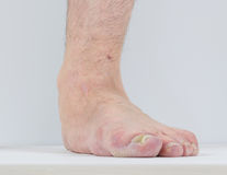 Men with signs of flatfoot foot and nail fungus. Foot Diseases. Fungal disease royalty free stock images