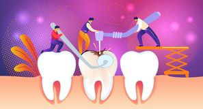 Men Treate Giant Unhealthy Tooth with Caries Hole royalty free illustration