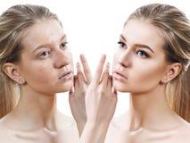 Menina com acne antes e depois do tratamento Imagem de Stock Royalty Free