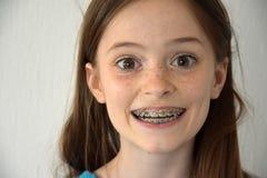Menina com cintas dentais fotos de stock royalty free