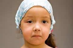 A menina com inchado acima do olho. Fotos de Stock Royalty Free