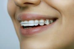 Menina com o retentor nos dentes foto de stock royalty free