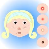 Menina com problemas da acne ilustração stock