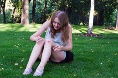 Menina com uma equimose em seu joelho Imagem de Stock Royalty Free