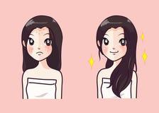 Menina da acne e menina clara bonita da pele antes que em seguida ilustração stock
