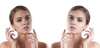 Menina da cara antes e depois de, vista dos termas Fotografia de Stock Royalty Free
