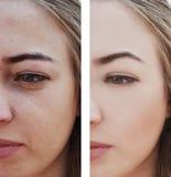 A menina enruga os olhos antes e depois dos procedimentos de remoção, sacos, inchação imagens de stock