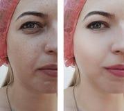 A menina enruga sacos do olho antes após o efeito dos procedimentos da diferença imagem de stock royalty free