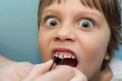 A menina puxa um dente foto de stock