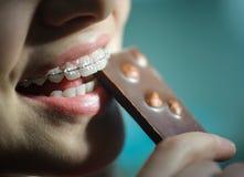Menina que come o chocolate, com as cintas cerâmicas dos dentes fotografia de stock royalty free
