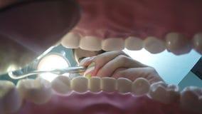 Mening van de mond bij de tandarts stock video