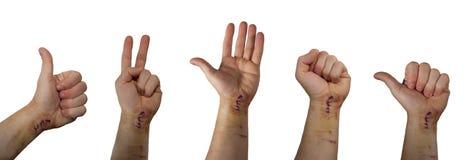 Meningen van de hand met vers litteken Stock Fotografie