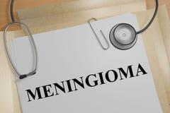 MENINGIOMA - medyczny pojęcie ilustracja wektor