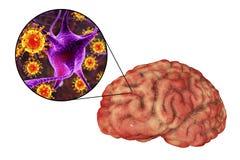 Meningite ed encefalite virali, concetto medico illustrazione di stock