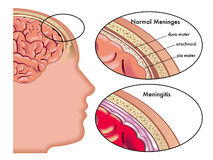 Meningitis Stock Image