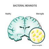 Meningitis. Human brain and meningococcal bacteria. Stock Image