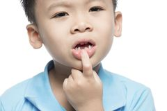 Menino perdido do dente de leite, fim acima da vista fotos de stock royalty free