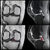 Meniscal reva, knä, MRI royaltyfria foton