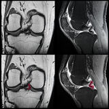 Knee ligament tear, MRI