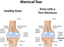 Meniscal Tear Stock Image