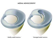 Meniscopathy Medial Foto de Stock