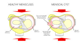 Meniscus _Meniscal cyst. Vector illustration of a proximal surface of tibia in a healthy human knee joint and unhealthy knee with horizontal tear of meniscus and stock illustration