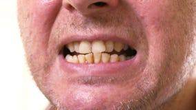 Mens die gele tanden tonen stock footage