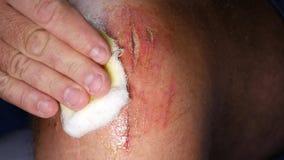 Mens die in het Ziekenhuis een Kniewond Gezette Antibiotica met Schoon Verband behandelen stock videobeelden