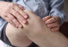 Mens die pijnlijke knie ervaart Stock Foto's